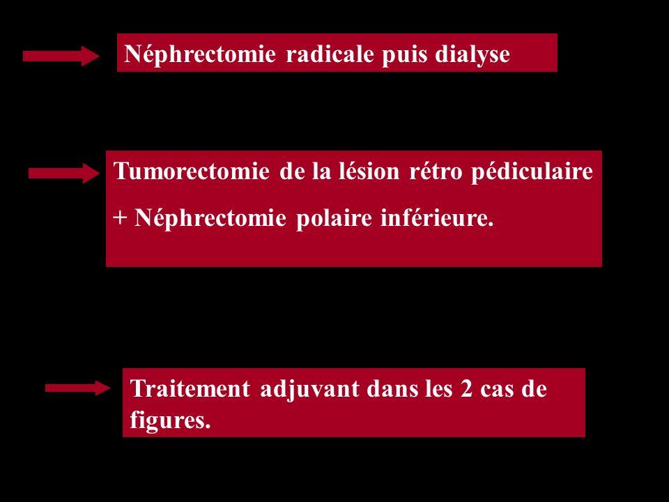 Néphrectomie radicale puis dialyse