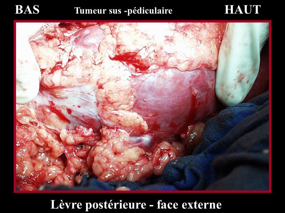 BAS Tumeur sus -pédiculaire HAUT