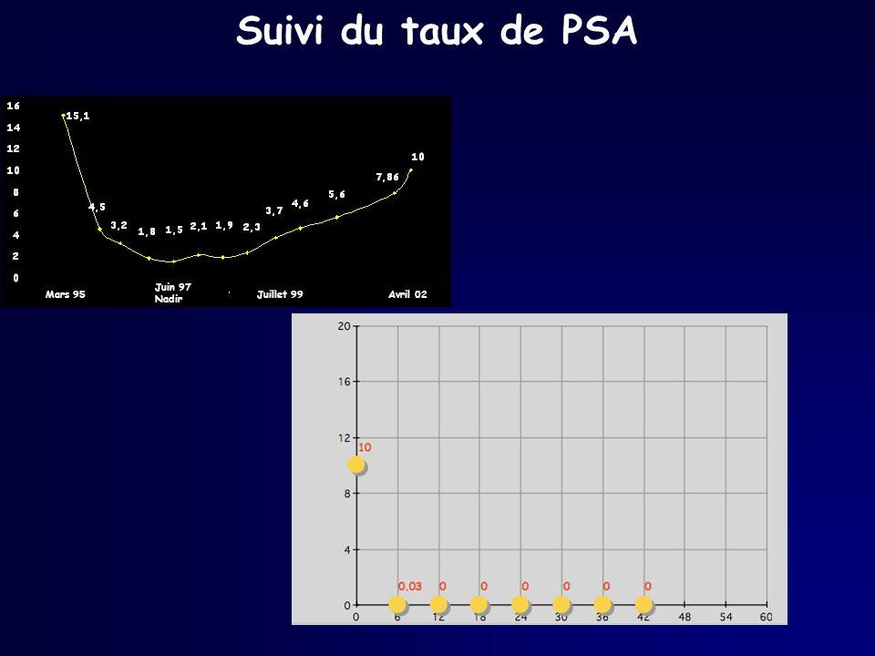 Suivi du taux de PSA Mars 95 Juin 97 Nadir Juillet 99 Avril 02