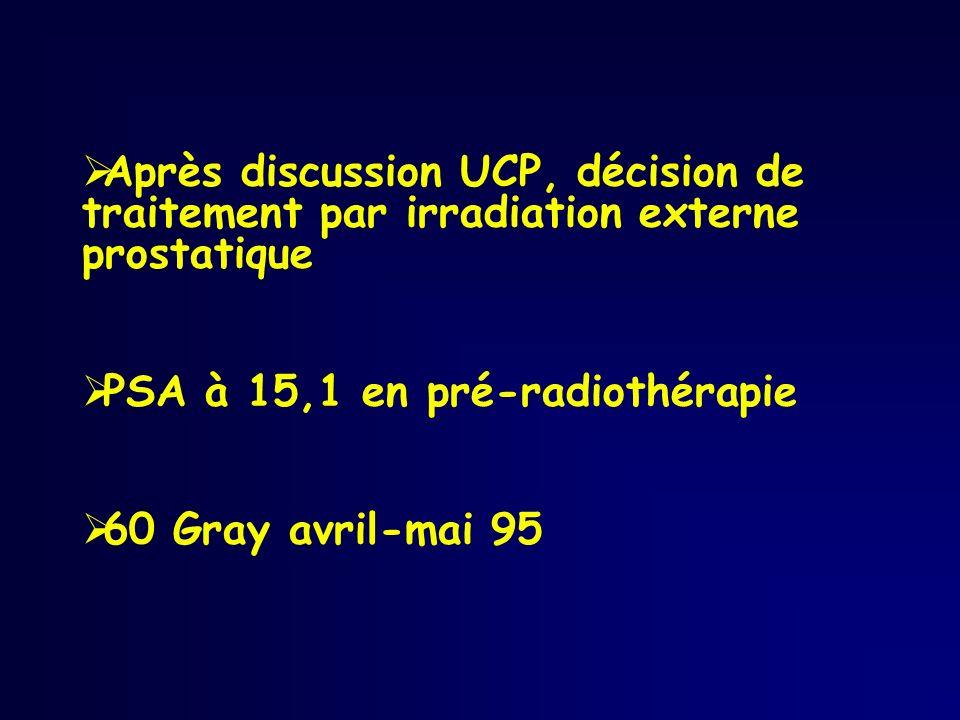 Après discussion UCP, décision de traitement par irradiation externe prostatique