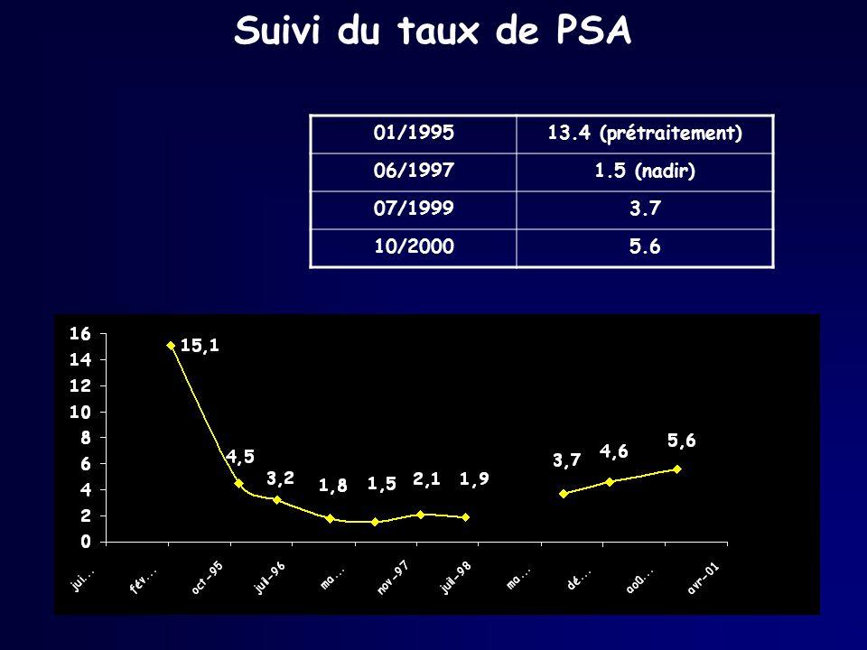 Suivi du taux de PSA 01/1995 13.4 (prétraitement) 06/1997 1.5 (nadir)