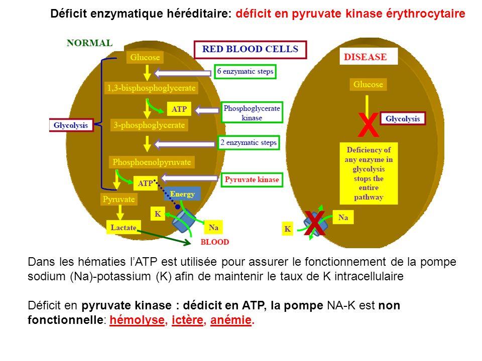 Déficit enzymatique héréditaire: déficit en pyruvate kinase érythrocytaire