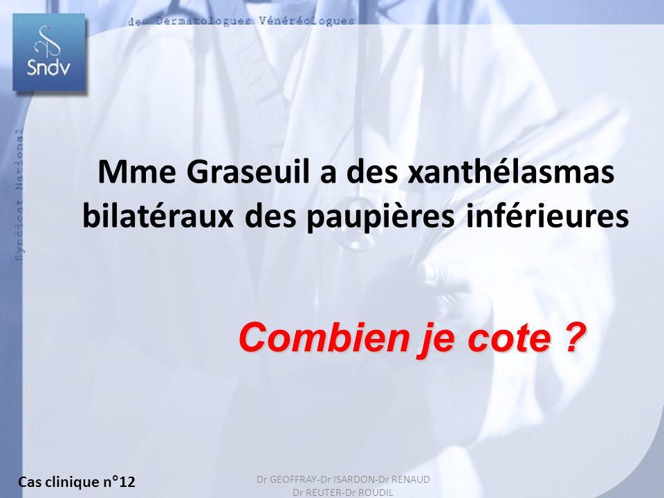 Mme Graseuil a des xanthélasmas bilatéraux des paupières inférieures