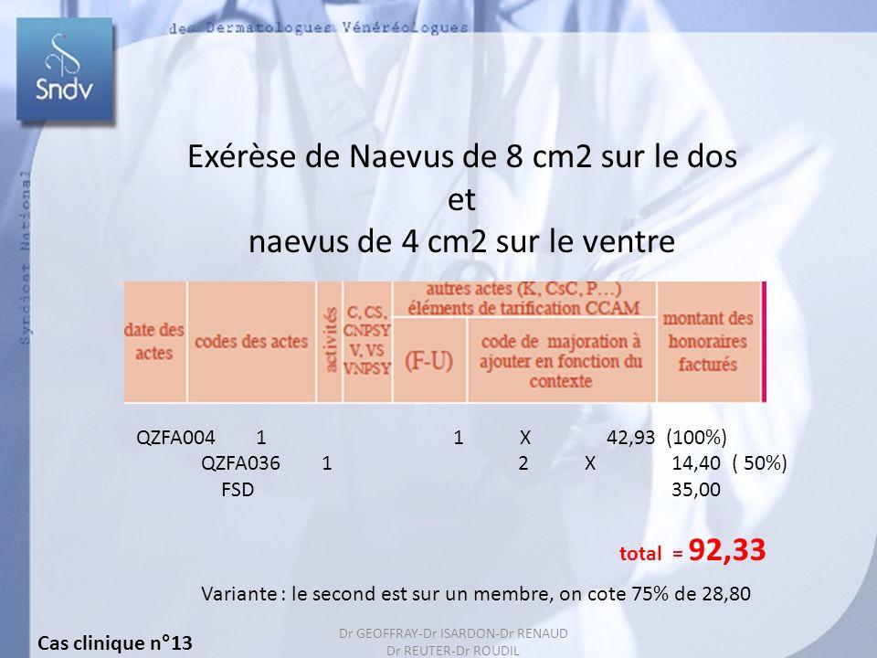Exérèse de Naevus de 8 cm2 sur le dos et naevus de 4 cm2 sur le ventre