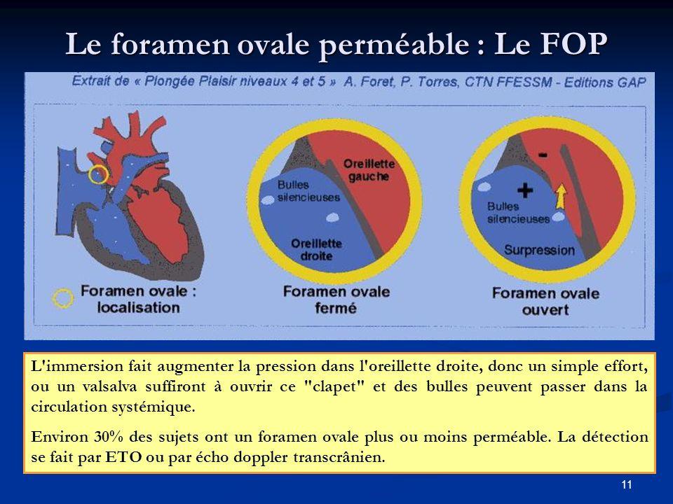 Le foramen ovale perméable : Le FOP