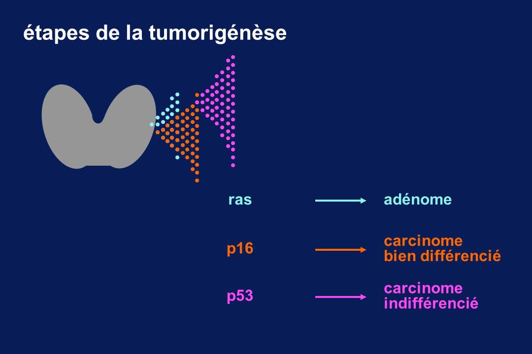 étapes de la tumorigénèse