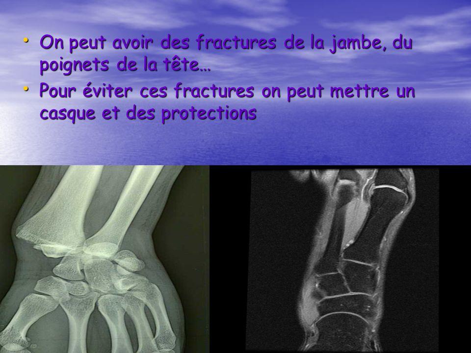 On peut avoir des fractures de la jambe, du poignets de la tête…