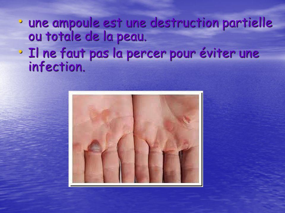 une ampoule est une destruction partielle ou totale de la peau.