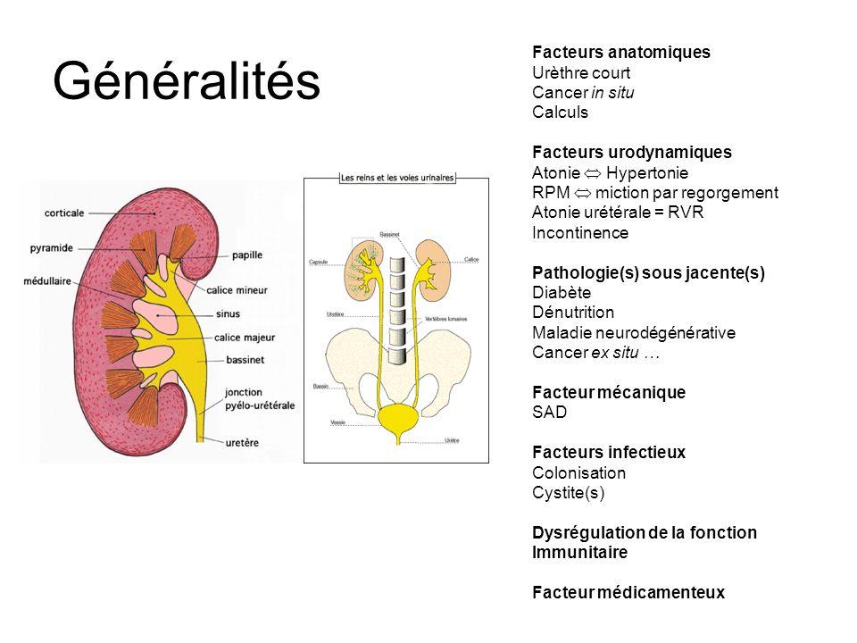 Généralités Facteurs anatomiques Urèthre court Cancer in situ Calculs
