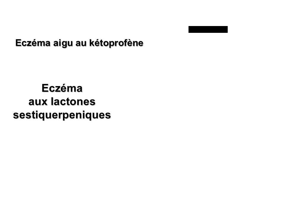 Eczéma aux lactones sestiquerpeniques