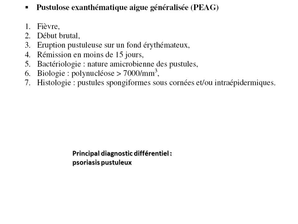 Principal diagnostic différentiel :