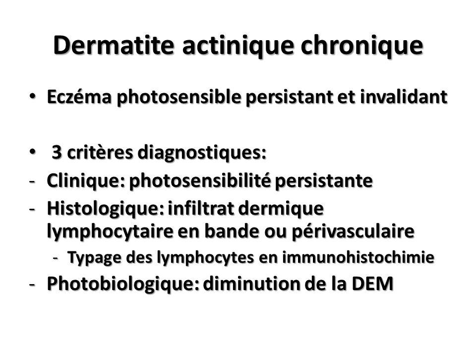 Dermatite actinique chronique