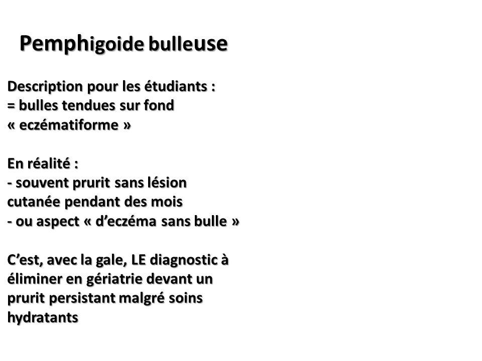Pemphigoide bulleuse Description pour les étudiants :