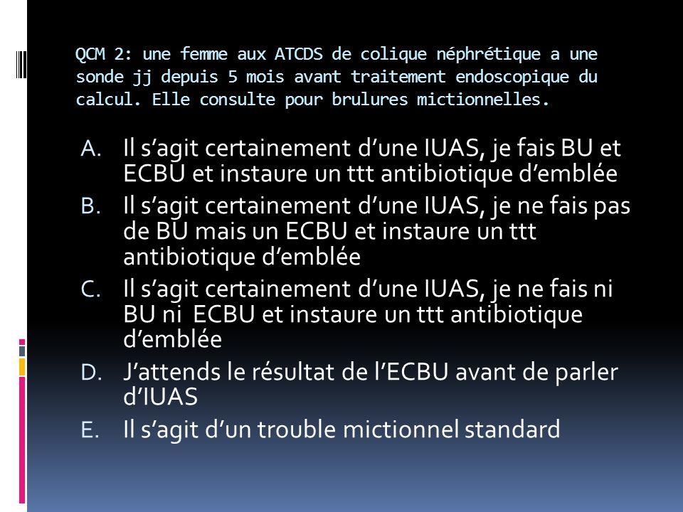 J'attends le résultat de l'ECBU avant de parler d'IUAS
