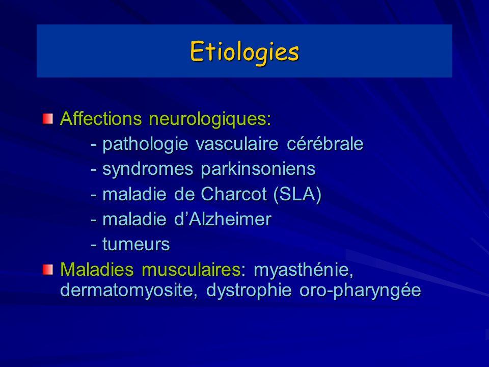 Etiologies Affections neurologiques: - pathologie vasculaire cérébrale