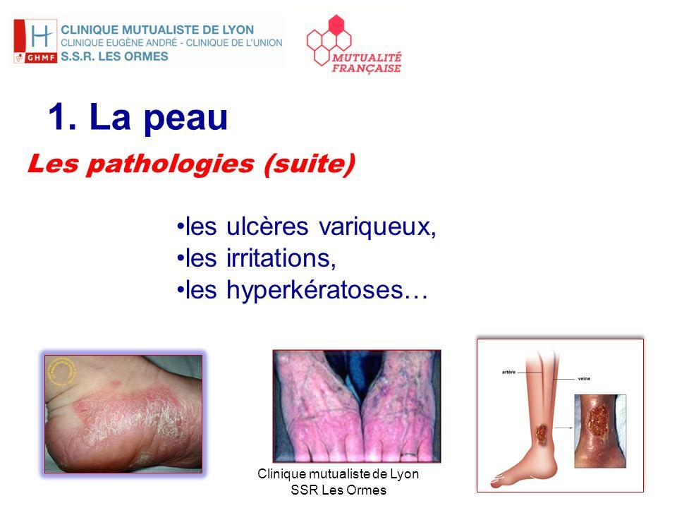 1. La peau Les pathologies (suite) les ulcères variqueux,