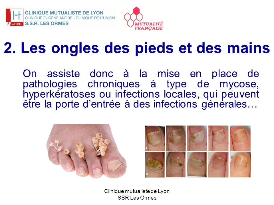 2. Les ongles des pieds et des mains