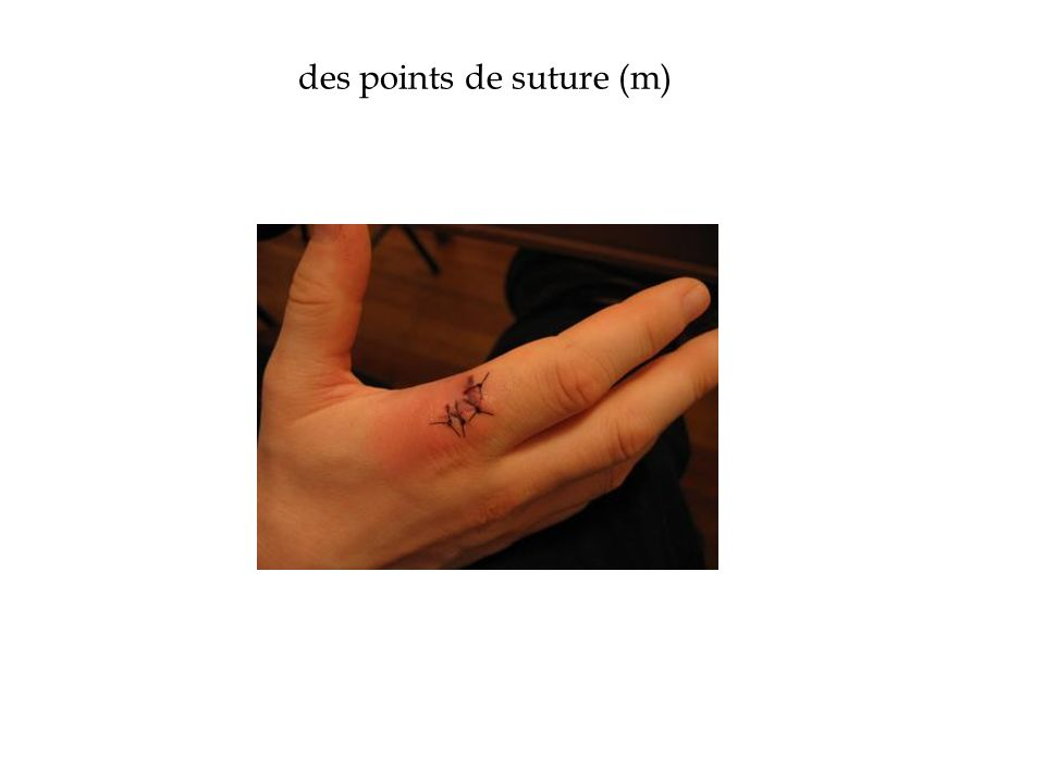 des points de suture (m)