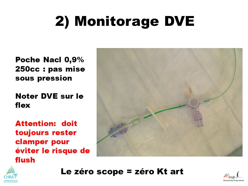 Le zéro scope = zéro Kt art