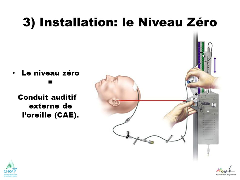 3) Installation: le Niveau Zéro