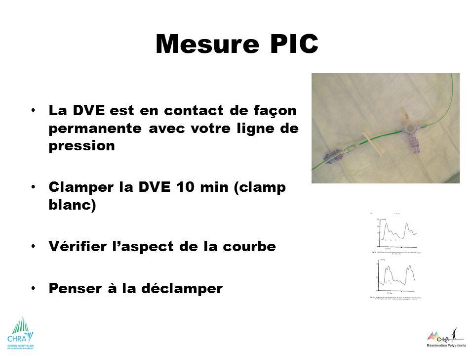 Mesure PIC La DVE est en contact de façon permanente avec votre ligne de pression. Clamper la DVE 10 min (clamp blanc)