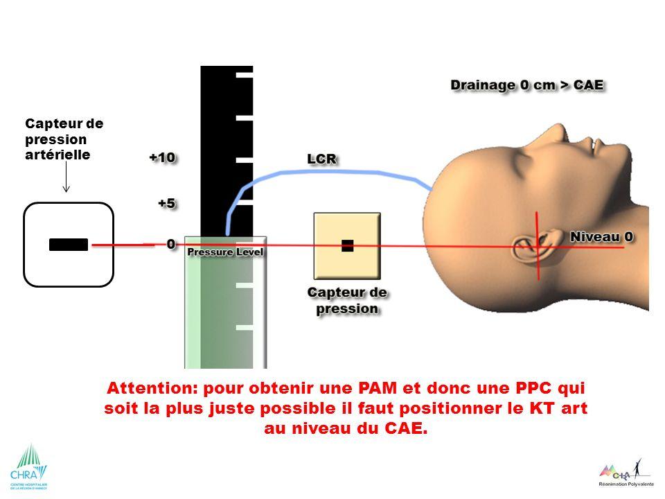 Capteur de pression artérielle