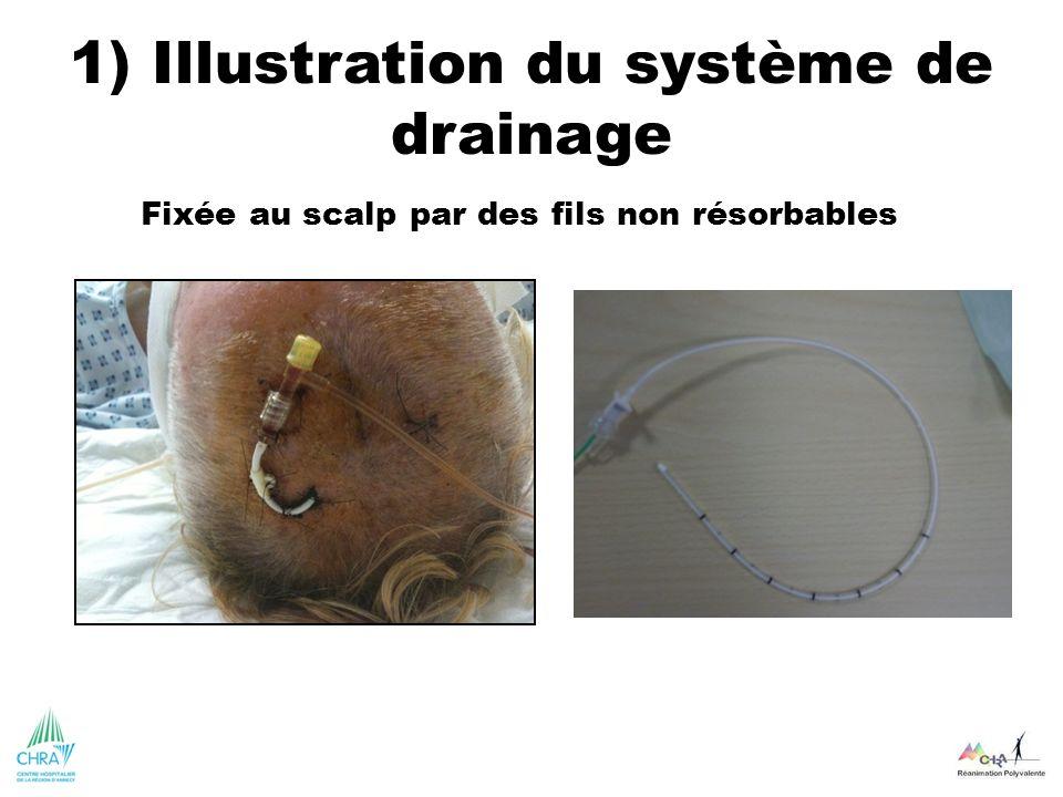 1) Illustration du système de drainage