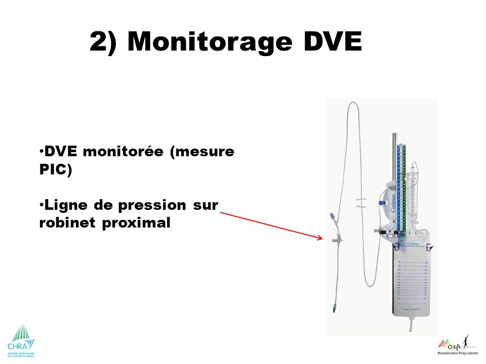 2) Monitorage DVE DVE monitorée (mesure PIC)