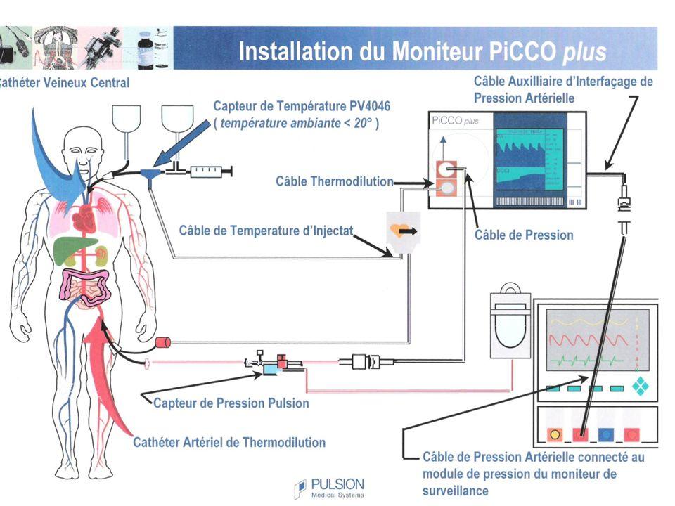 PICCO Mise en place : Après bilan de coagulation