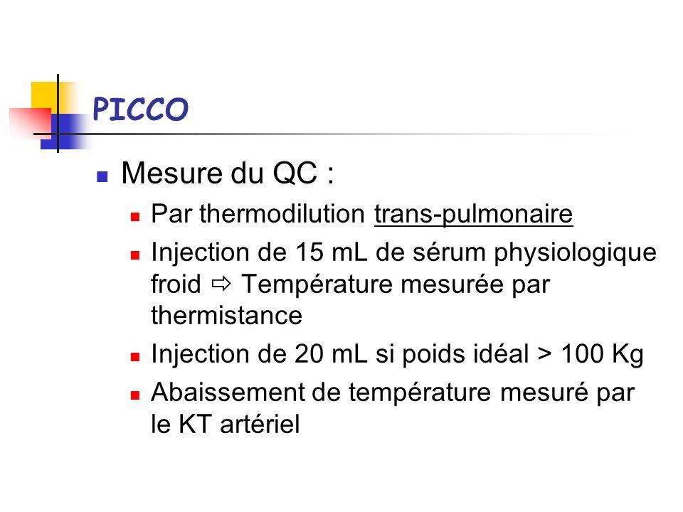 PICCO Mesure du QC : Par thermodilution trans-pulmonaire