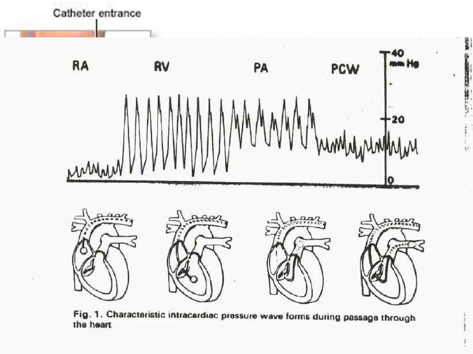 Swan - Ganz Mise en place : Après ECG et bilan de coagulation