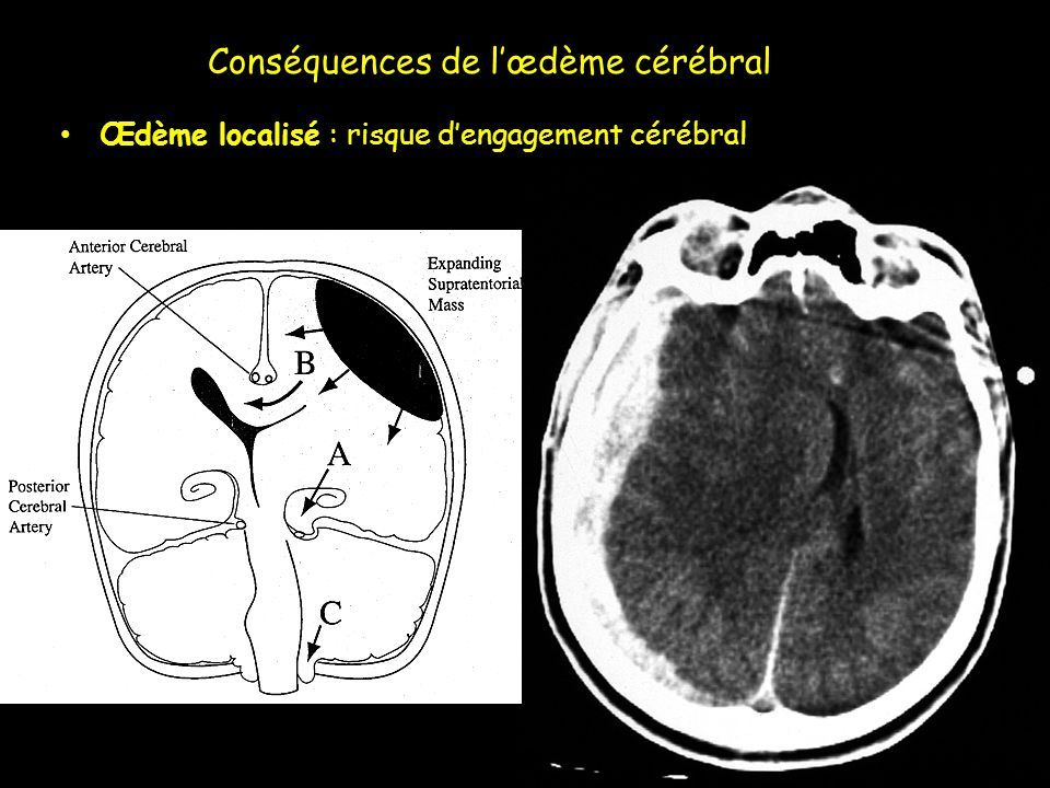 Conséquences de l'œdème cérébral