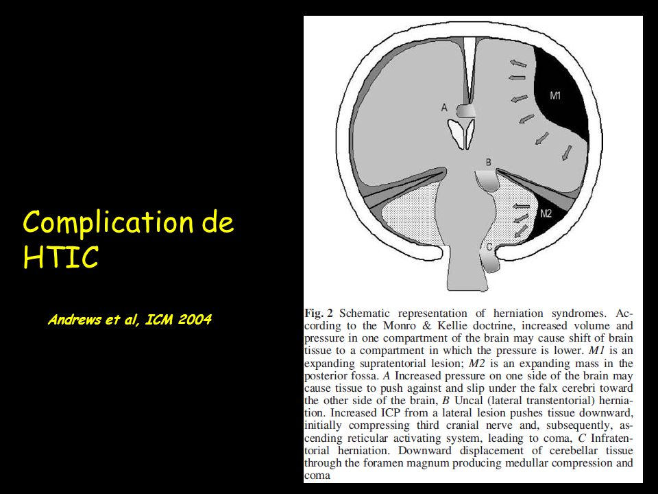 Complication de HTIC Andrews et al, ICM 2004