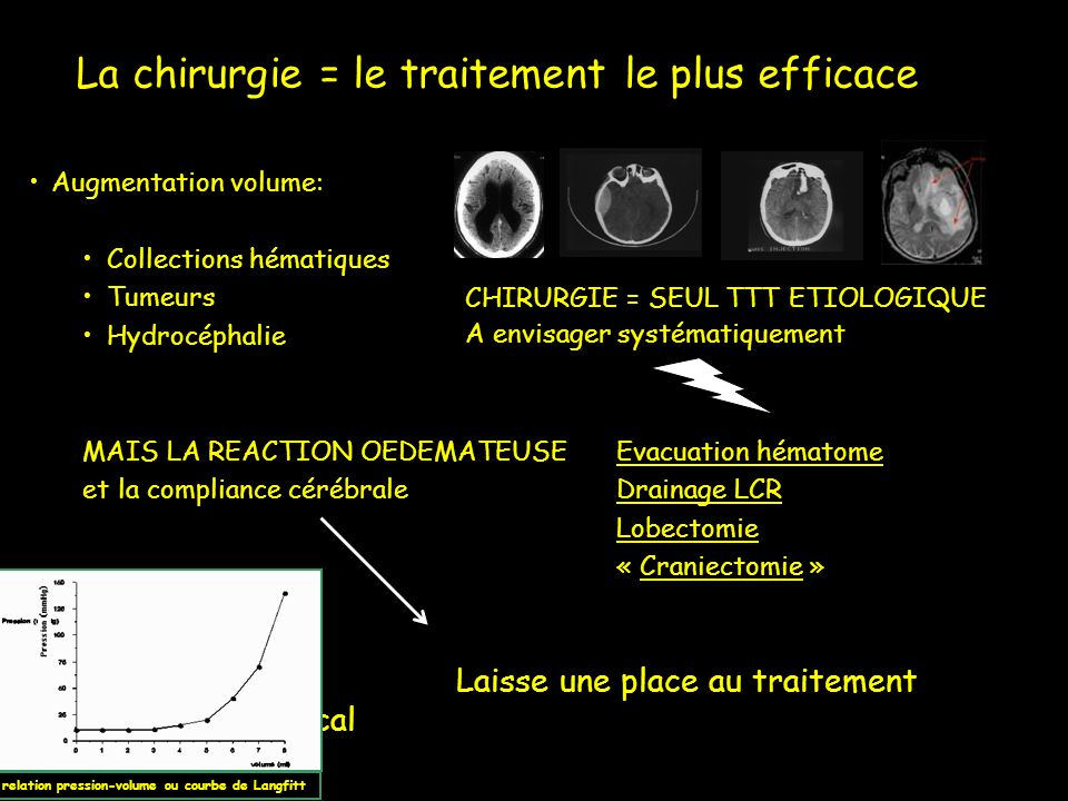 La chirurgie = le traitement le plus efficace