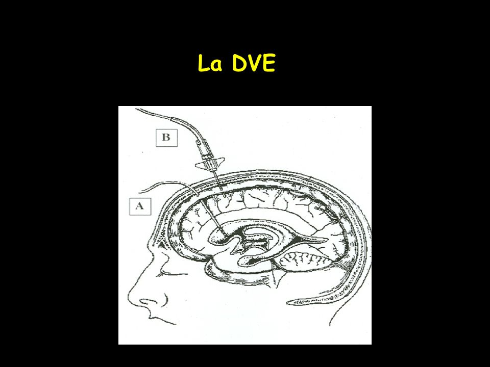 La DVE
