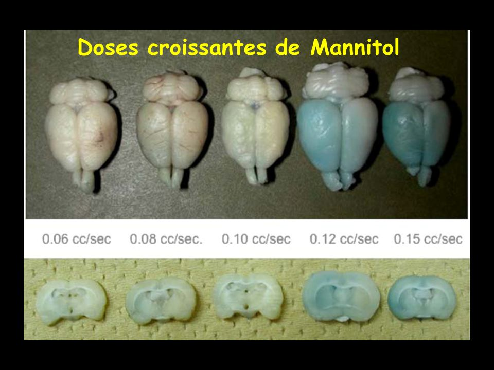 Doses croissantes de Mannitol