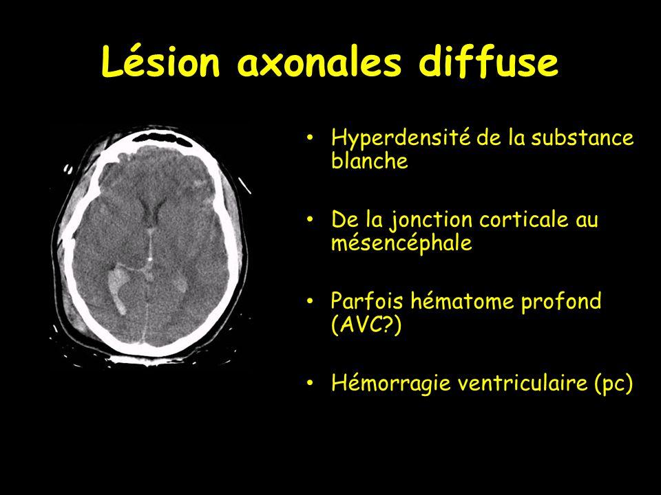Lésion axonales diffuse