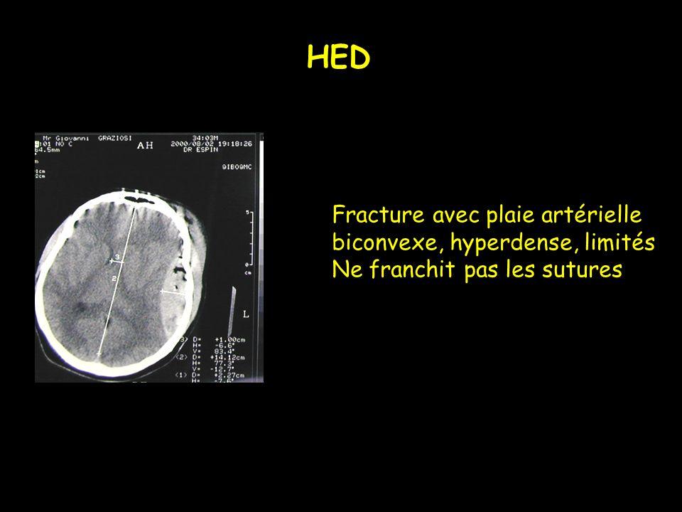 HED Fracture avec plaie artérielle biconvexe, hyperdense, limités