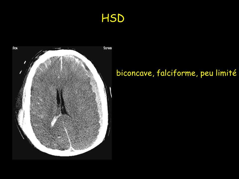 HSD biconcave, falciforme, peu limité