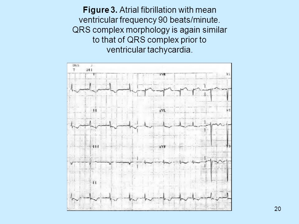 Figure 3. Atrial fibrillation with mean ventricular frequency 90 beats/minute. QRS complex morphology is again similar to that of QRS complex prior to ventricular tachycardia.