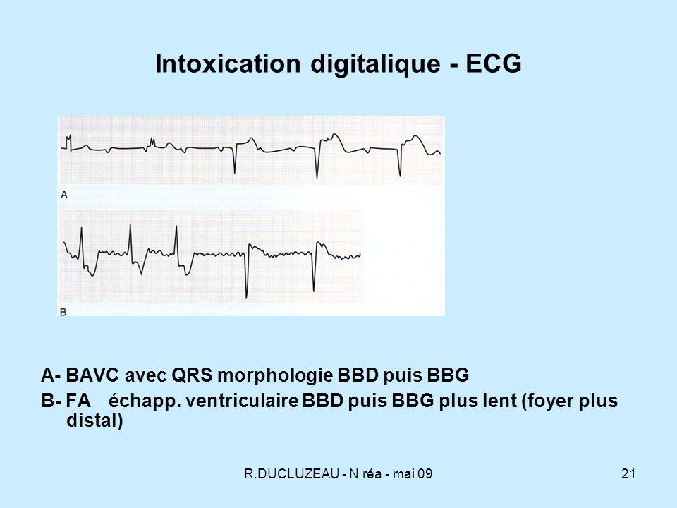 Intoxication digitalique - ECG