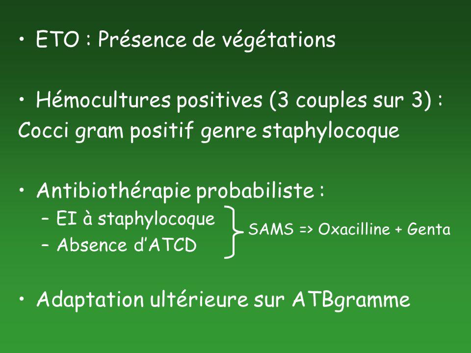ETO : Présence de végétations