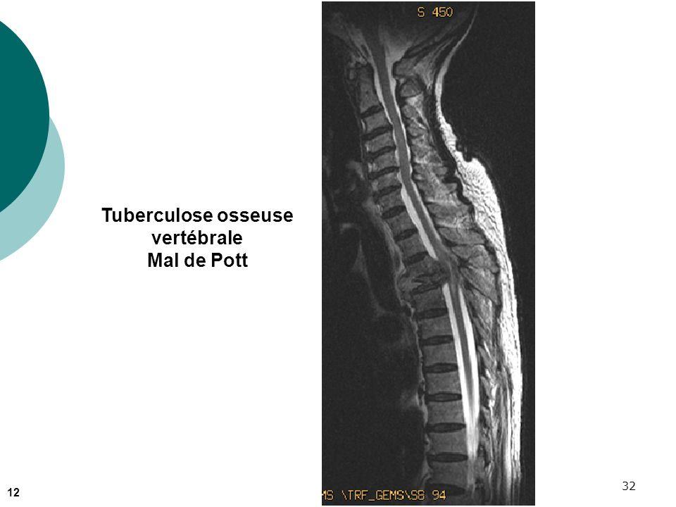 Tuberculose osseuse vertébrale