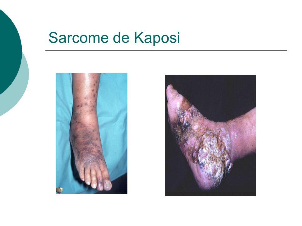 Sarcome de Kaposi