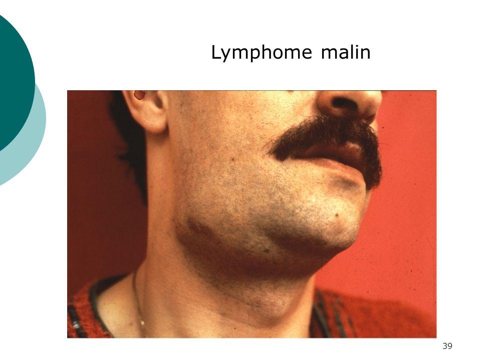 Lymphome malin