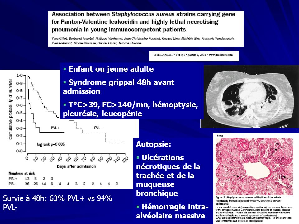 Enfant ou jeune adulte Syndrome grippal 48h avant admission. T°C>39, FC>140/mn, hémoptysie, pleurésie, leucopénie.