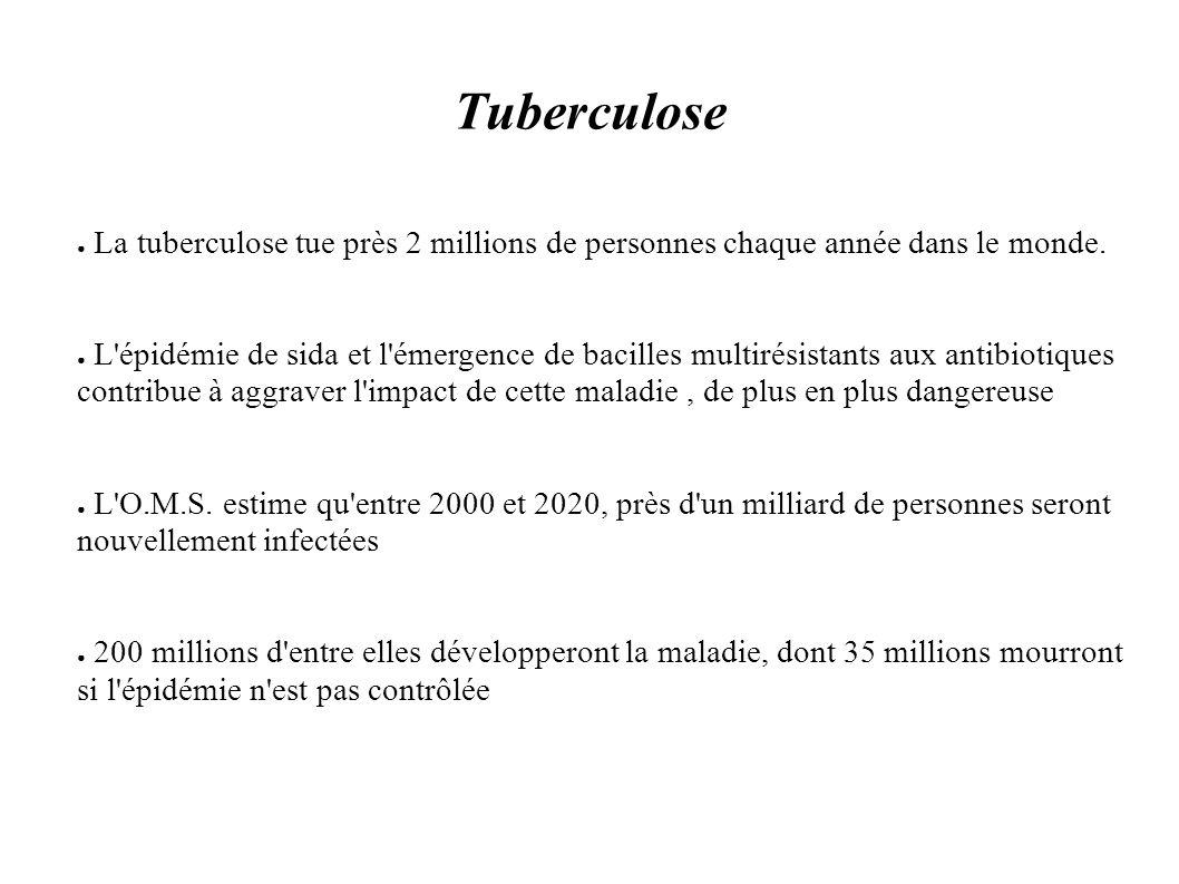 Tuberculose La tuberculose tue près 2 millions de personnes chaque année dans le monde.