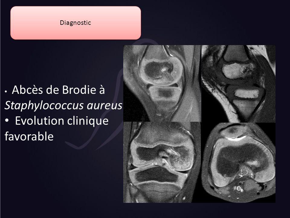 Evolution clinique favorable