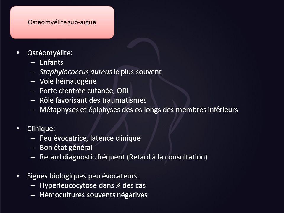 Ostéomyélite sub-aiguë