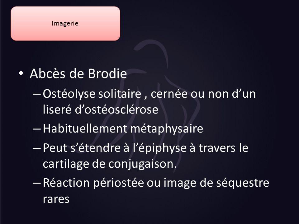 Imagerie Abcès de Brodie. Ostéolyse solitaire , cernée ou non d'un liseré d'ostéosclérose. Habituellement métaphysaire.